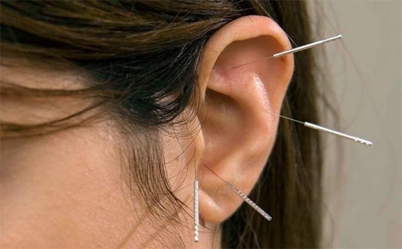 Acupuntura Auricular Estética Valor Vila Alice - Acupuntura Estética na Face