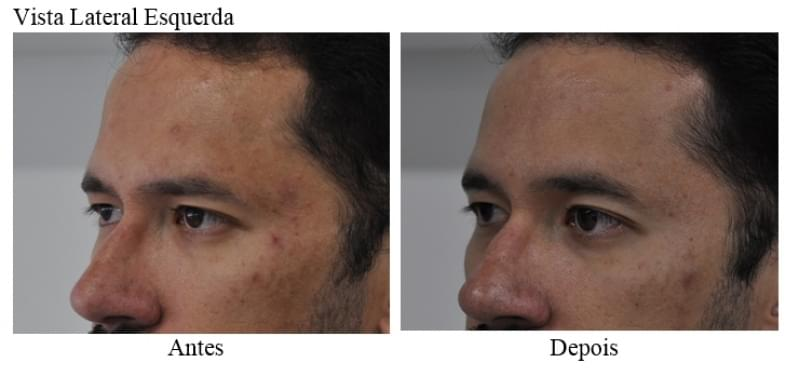 Acupuntura Estética Acne Valor Vila Nova Conquista - Acupuntura Estética na Face