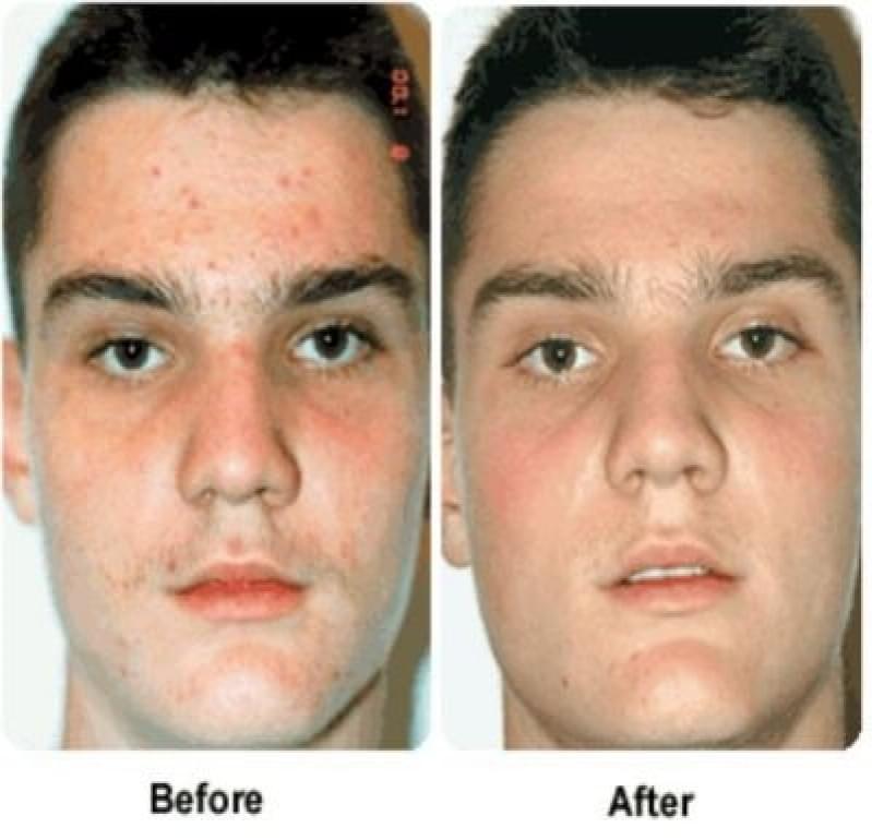 Acupuntura Estética Acne Jardim Santa Elizabeth - Acupuntura Estética na Face