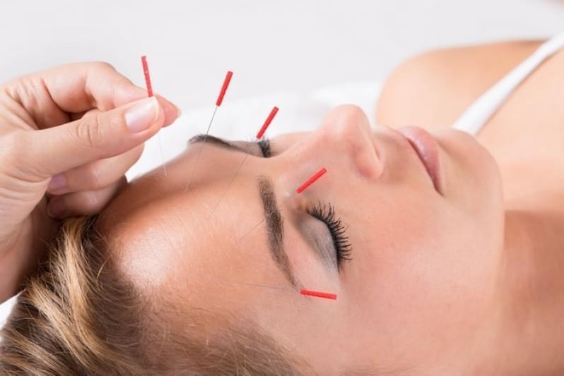 Acupuntura Estética na Face Valor Centreville - Acupuntura Estética Olheiras