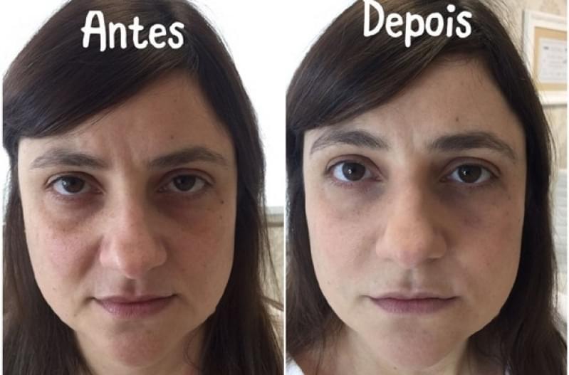 Acupuntura Estética para Olheiras Valor Jardim Santo Antônio - Acupuntura Estética na Face