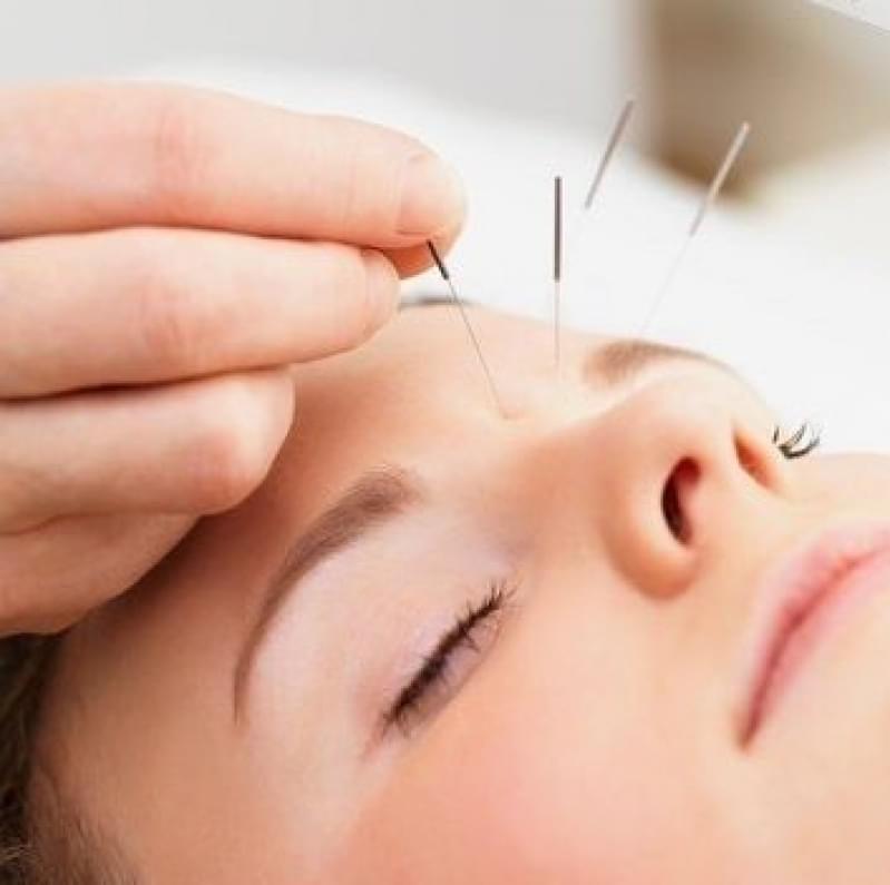 Acupuntura Estética Vila Clarice - Acupuntura Estética na Face