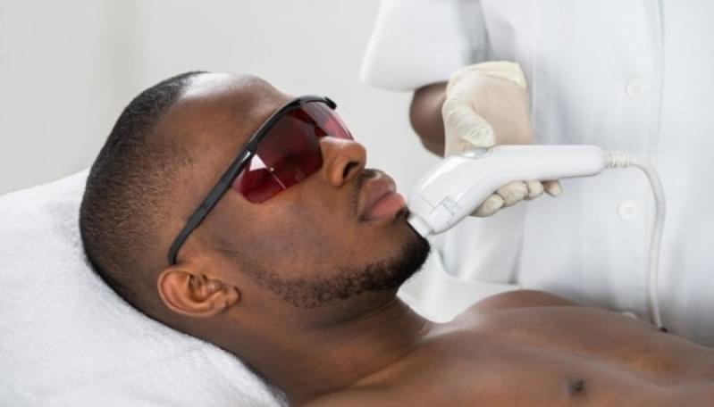 Depilação a Laser Barba Preço Piraporinha - Depilação a Laser Masculina