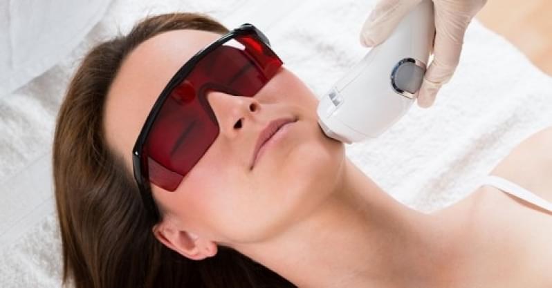 Depilação a Laser Buço Preço Homero Thon - Clínica para Depilação a Laser
