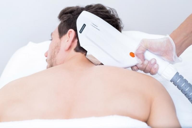 Depilação a Laser Corpo Inteiro Alvarenga - Depilação a Laser para Homens