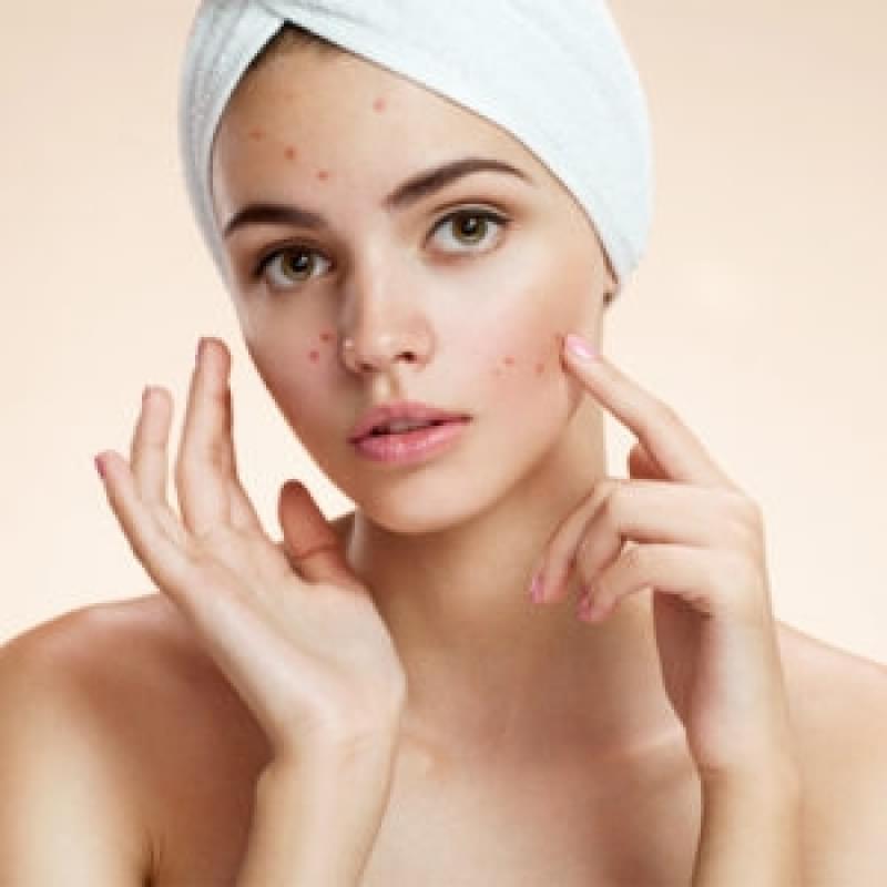 Limpeza de Pele Acne Campanário - Limpeza de Pele com Peeling de Diamante