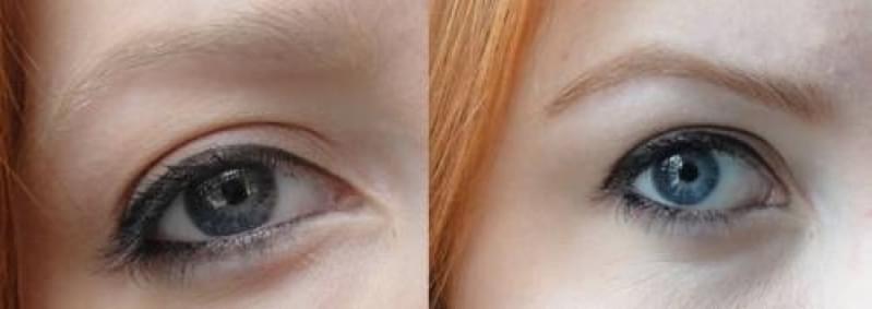 Micropigmentação Sobrancelha Ruiva Preço Vila Alpina - Micropigmentação de Sobrancelha Esfumada