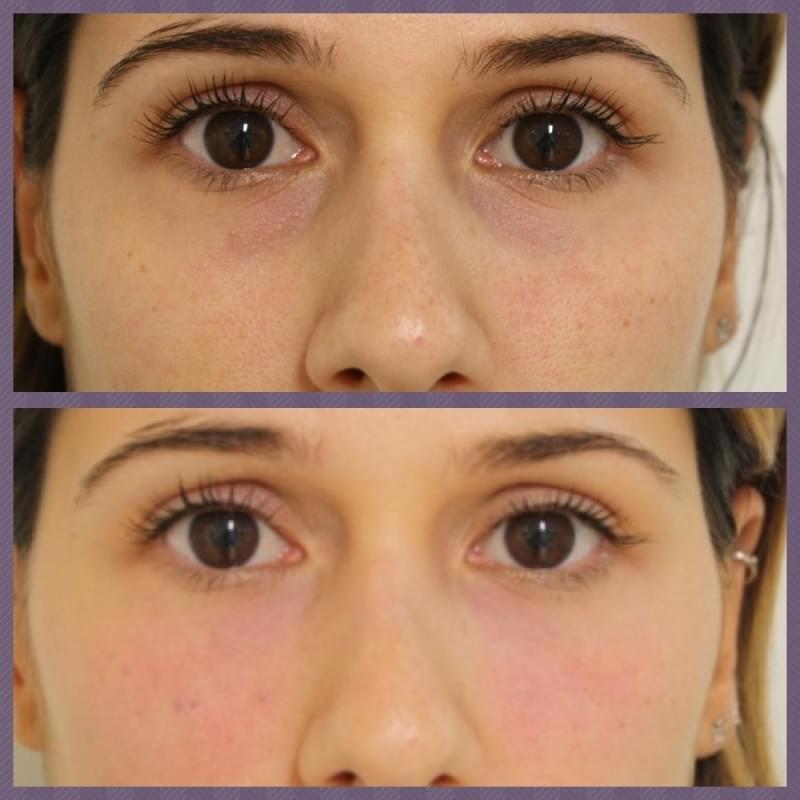 Onde Encontro Acupuntura Estética Olheiras Bairro Silveira - Acupuntura Estética na Face