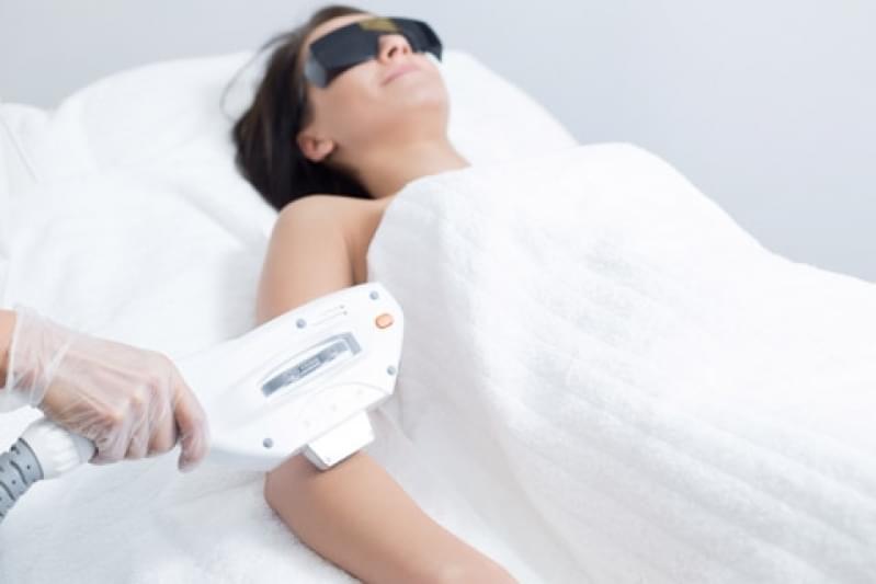 Onde Encontro Depilação a Laser Corpo Todo Vila Noêmia - Depilação a Laser Barba