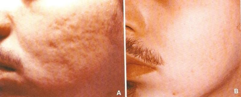Quanto Custa Acupuntura Estética Acne Vila Noêmia - Acupuntura Estética na Face