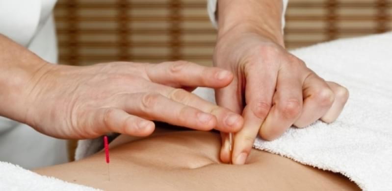Quanto Custa Acupuntura Estética Gordura Localizada Alvinópolis - Acupuntura Estética na Face