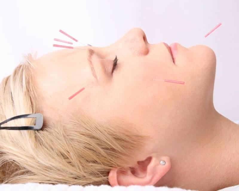 Quanto Custa Acupuntura Estética para o Rosto Vila Nogueira - Acupuntura Estética na Face