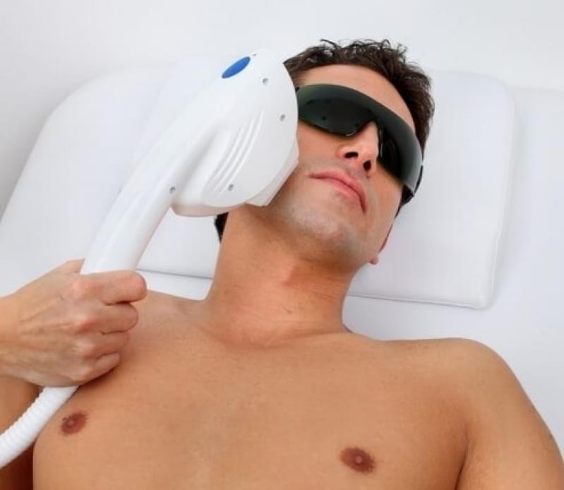 Quanto Custa Depilação a Laser Barba Santo Antônio - Clínica para Depilação a Laser