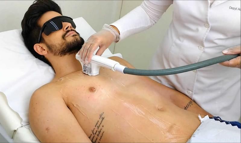 Quanto Custa Depilação a Laser Masculina Jardim Vila Rica - Depilação a Laser Masculina