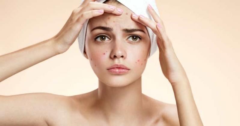 Quanto Custa Limpeza de Pele Acne Casa Grande - Limpeza de Pele com Peeling de Diamante