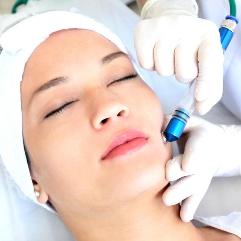 Quanto Custa Limpeza de Pele com Peeling de Diamante Sitio Mato Dentro - Limpeza de Pele Acne