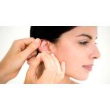 acupuntura auricular estética preço Vila Nogueira