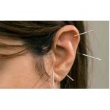 acupuntura auricular estética valor Vila Alice