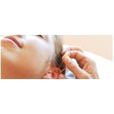 acupuntura auricular estética Jardim Sapopema