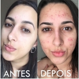 acupuntura estética acne preço Jardim Stella