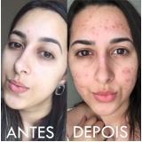 acupuntura estética acne preço Parque Miami