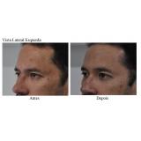 acupuntura estética acne valor Jardim dos Eucaliptos