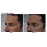 acupuntura estética acne valor Serraria