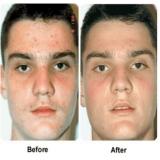 acupuntura estética acne Bairro Silveira