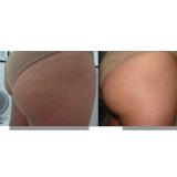 acupuntura estética estrias preço Capuava