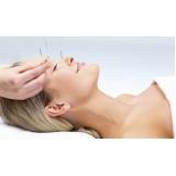 acupuntura estética na face Boa Vista