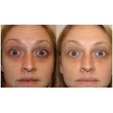 acupuntura estética olheiras preço Jardim União
