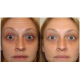 acupuntura estética para olheiras preço Parque Andreense