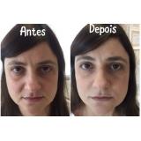 acupuntura estética para olheiras valor Jardim Santo Antônio