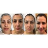 acupuntura estética para olheiras Vila Alice