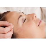 acupuntura estética preço Jardim Rina