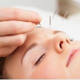 acupuntura estética Vila Clarice