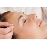 acupuntura estética na face