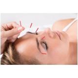 acupuntura estética para o rosto