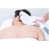 depilação a laser corpo inteiro Alvarenga