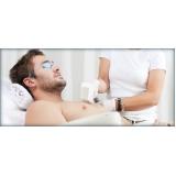 depilação a laser para homens