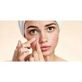 limpeza de pele acne preço Vila Lidia