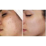 limpeza de pele com peeling de bambu preço casa