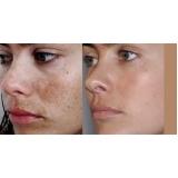limpeza de pele com peeling de bambu Vila Alice