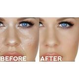 limpeza de pele para pele oleosa Condomínio Maracanã