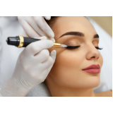 micropigmentação no rosto preço Vila Clarice