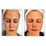 onde encontro acupuntura estética acne Santo andré: