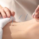 onde encontro acupuntura estética gordura localizada Campanário
