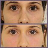 onde encontro acupuntura estética olheiras Bairro Suisso