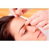 onde encontro acupuntura estética para o rosto Parque João Ramalho