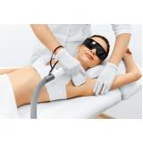 onde encontro depilação a laser axila Serraria